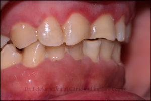 Implant Clinic, Implant Centre, Implant, KhargharDentist