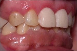 Implant Clinic, Implant Centre, Implant, KhargharDentist