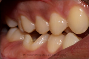 Implant Clinic, Implant Centre, Implant, KhargharDentist, Best Dentist In Kharghar, Kharghar Dentist