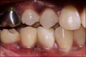 Implant Clinic, Implant Centre, Implant, KhargharDentist, Best Dentist In Kharghar, Kharghar Dentist